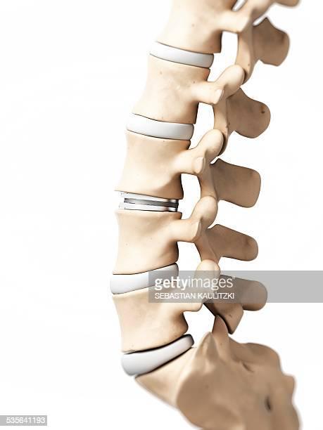 human lumbar spine, illustration - spine stock illustrations