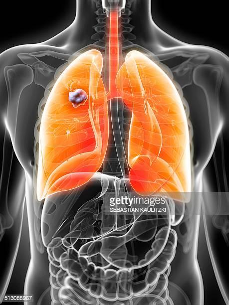 human lung cancer, artwork - human lung stock illustrations, clip art, cartoons, & icons