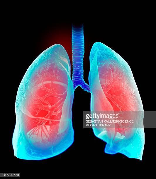 ilustraciones, imágenes clip art, dibujos animados e iconos de stock de human lungs, illustration - pulmones humanos