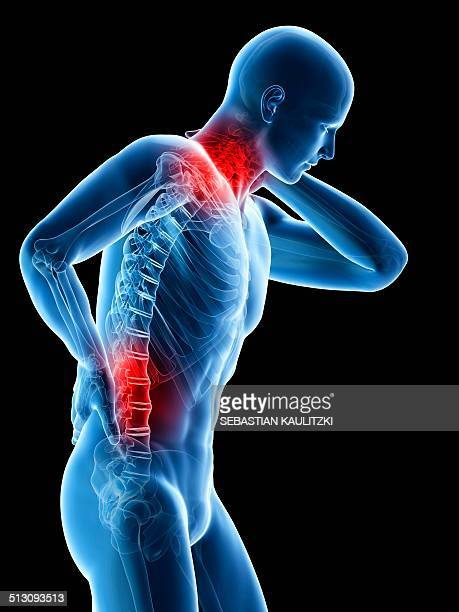 illustrations, cliparts, dessins animés et icônes de human neck and back pain, artwork - mal de dos