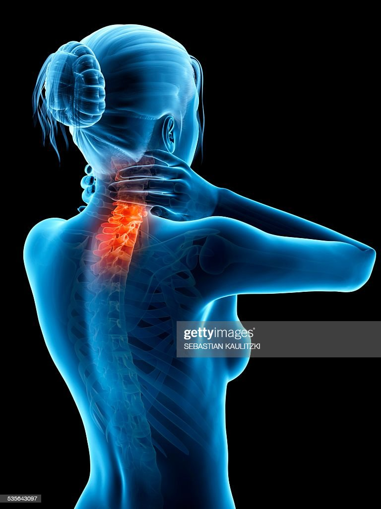 Human Neck Pain Illustration Stock Illustration Getty Images