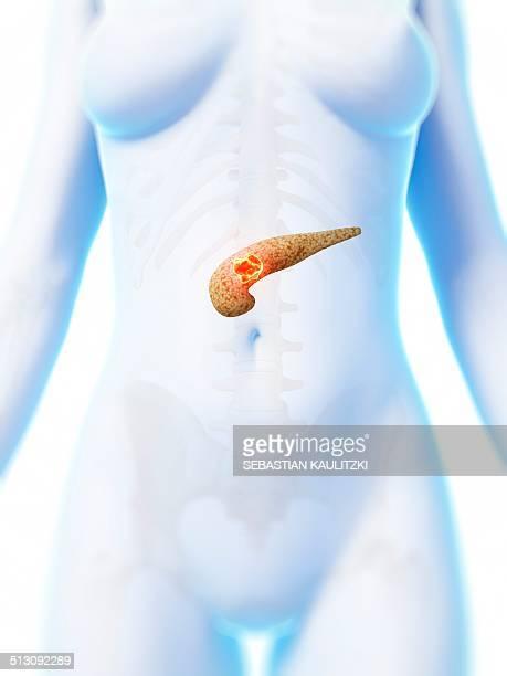 human pancreas showing tumor, artwork - pancreatic cancer stock illustrations
