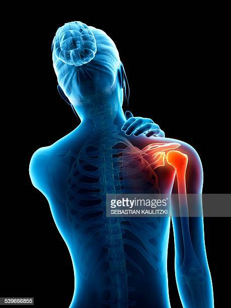 human shoulder pain, illustration - rear view stock illustrations