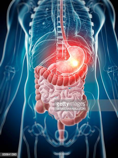 human stomach pain, illustration - digestive system stock illustrations