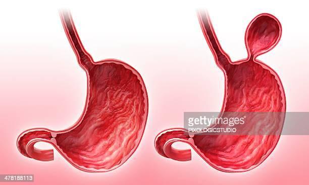 ilustrações, clipart, desenhos animados e ícones de human stomach with hernia, artwork - estômago