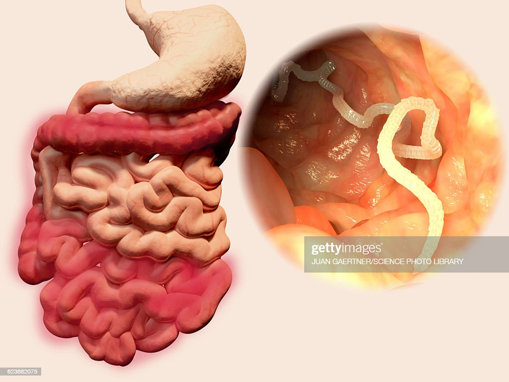 Tapeworm Parasite >> Human Tapeworm Infection Illustration High Res Vector