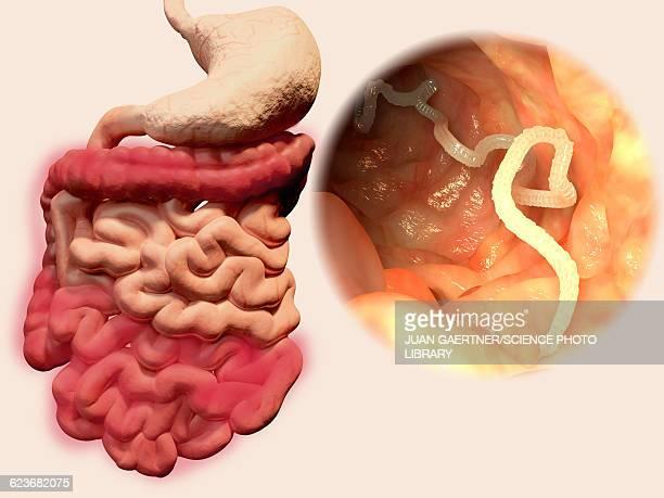 Human tapeworm infection, illustration