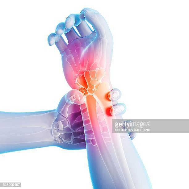 human wrist pain, artwork - wrist stock illustrations, clip art, cartoons, & icons