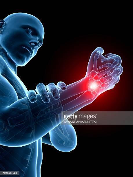 human wrist pain, illustration - wrist stock illustrations, clip art, cartoons, & icons