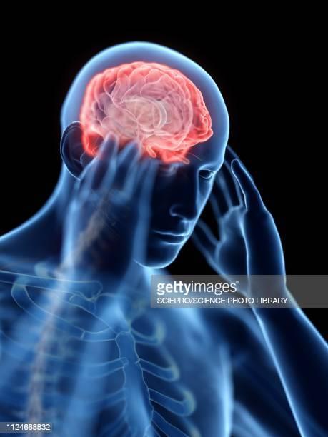 ilustraciones, imágenes clip art, dibujos animados e iconos de stock de illustration of a man with a headache - dolor de cabeza