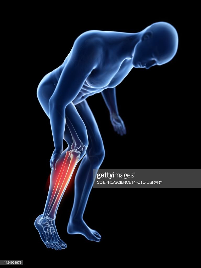 Illustration of a man with a painful calf : stock illustration