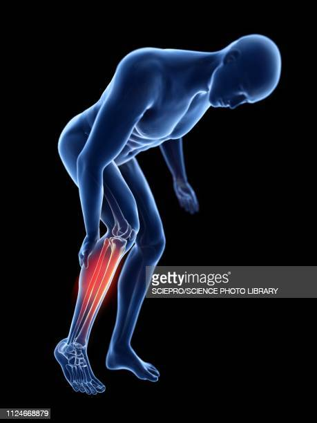 illustration of a man with a painful calf - rheumatism stock illustrations