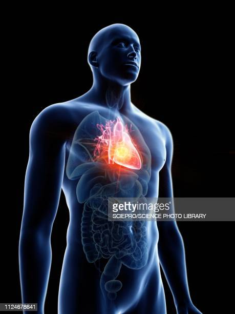 illustration of a man's heart tumour - coronary artery stock illustrations, clip art, cartoons, & icons