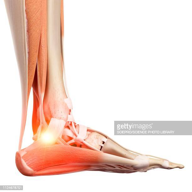 illustration of a painful ankle - rheumatism stock illustrations