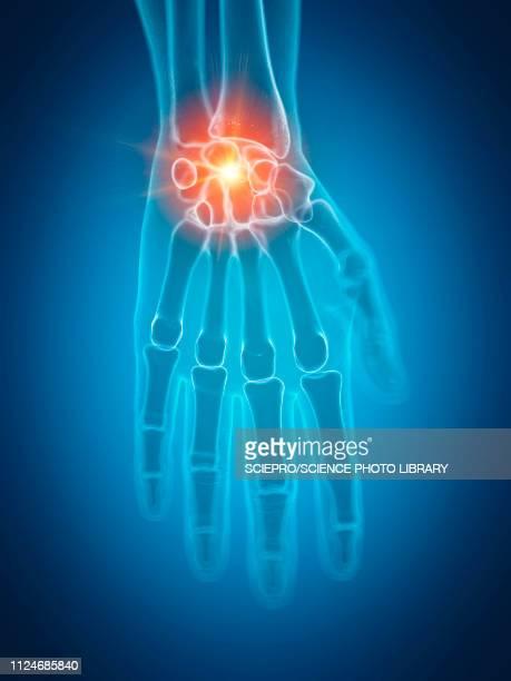 ilustrações, clipart, desenhos animados e ícones de illustration of a painful wrist - articulação humana termo anatômico