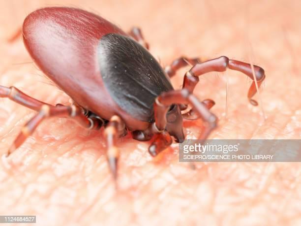 illustration of a tick biting human skin - ライム病点のイラスト素材/クリップアート素材/マンガ素材/アイコン素材