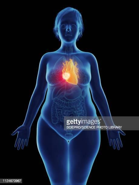 illustration of a tumour in a woman's heart - myocardium stock illustrations, clip art, cartoons, & icons