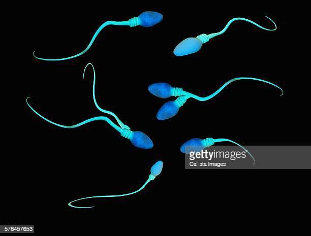 illustration of abnormalities and deformities of human sperm cells - sperm stock illustrations