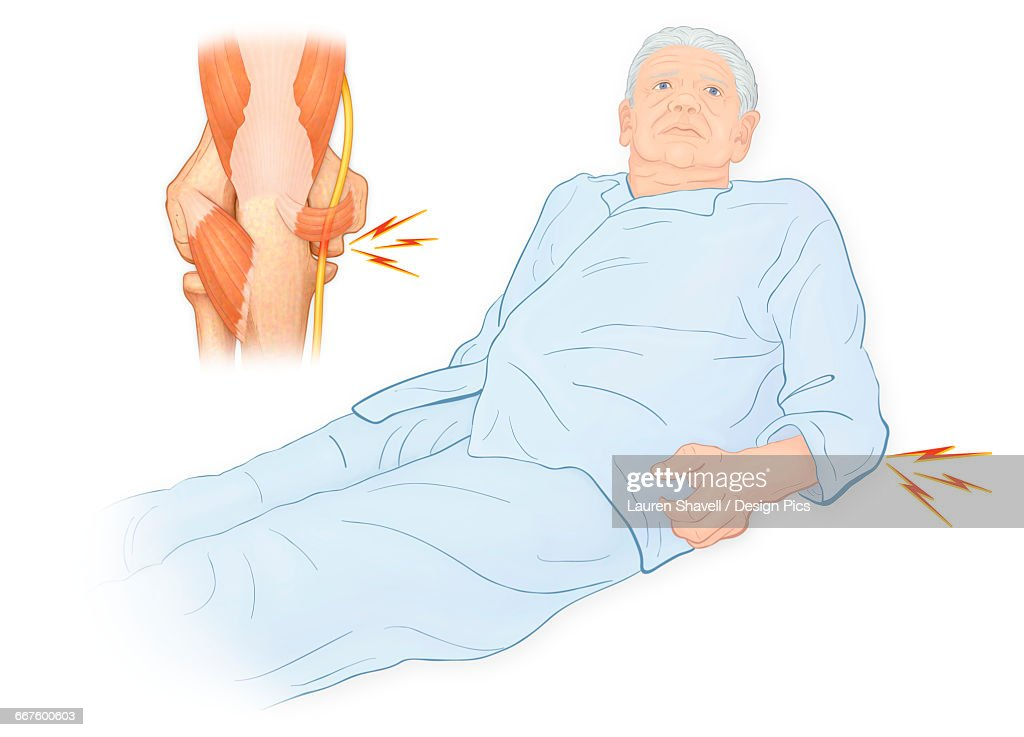Illustration Of An Elderly Man With Anconeus Epitrochlearis Which Is ...