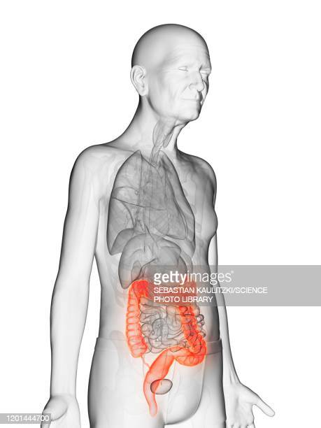 illustration of an elderly man's colon - human intestine stock illustrations