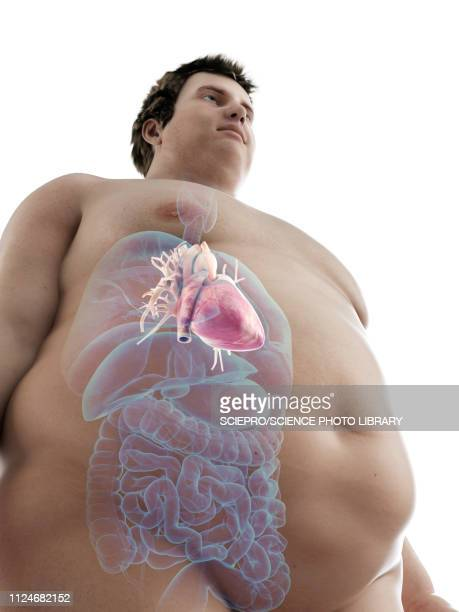 illustration of an obese man's heart - cardiologist stock illustrations