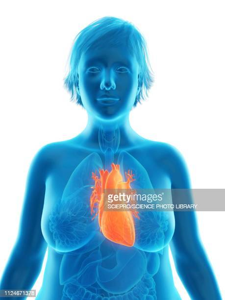 illustration of an obese woman's heart - myocardium stock illustrations, clip art, cartoons, & icons