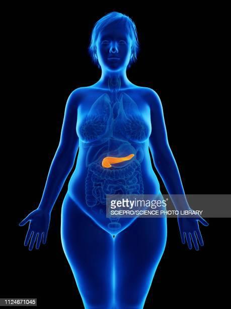 illustration of an obese woman's pancreas - pancreas stock illustrations, clip art, cartoons, & icons