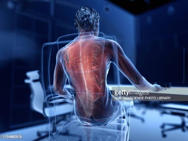 illustrations, cliparts, dessins animés et icônes de illustration of an office worker's painful muscles - mal de dos