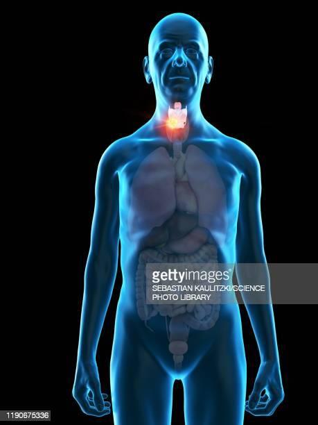 ilustraciones, imágenes clip art, dibujos animados e iconos de stock de illustration of an old man's larynx tumour - cuerdas vocales