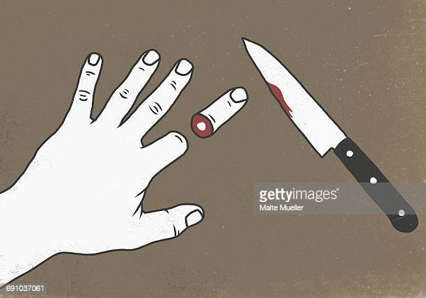 Illustration of chopped finger by knife