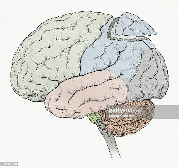 Illustration of human brain showing frontal, temporal, occipital lobes, section removed from parietal lobe, cerebellum and medulla oblongata