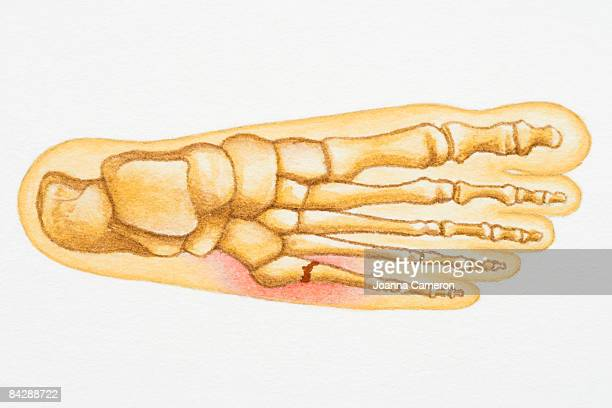 illustration of human foot with fracture to fifth metatarsal or little toe - toe stock illustrations, clip art, cartoons, & icons