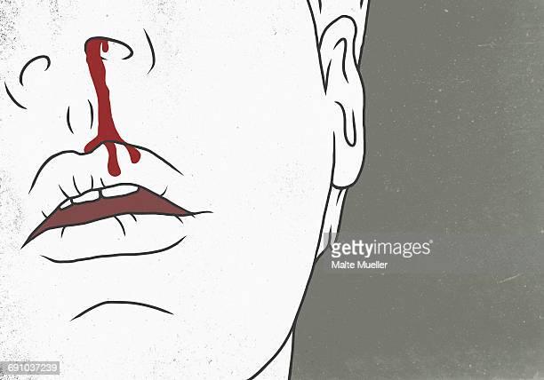ilustraciones, imágenes clip art, dibujos animados e iconos de stock de illustration of man with bleeding nose representing injury - hombre sensible