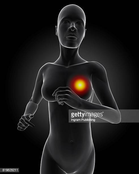 Illustration of woman with chest pain