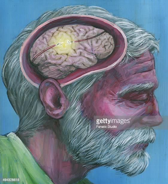 Illustration shot of senior man with Alzheimer's disease