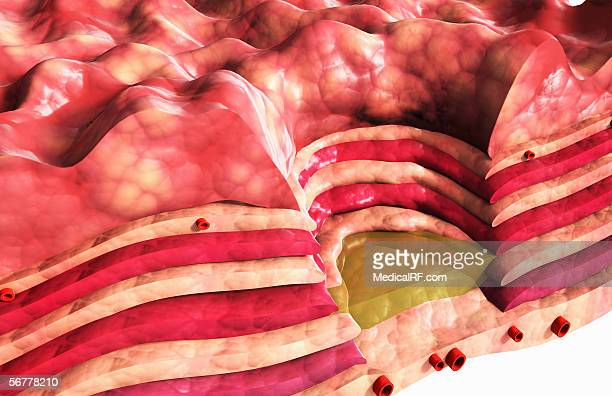 Illustration showing a chronic stomach ulcer.
