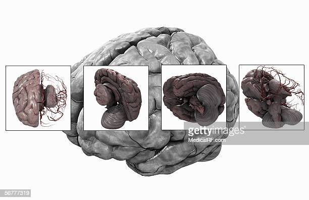 illustration showing four views of a brain with the left half of the cerebrum removed, over a larger image of a normal brain. - temporal lobe stock illustrations, clip art, cartoons, & icons