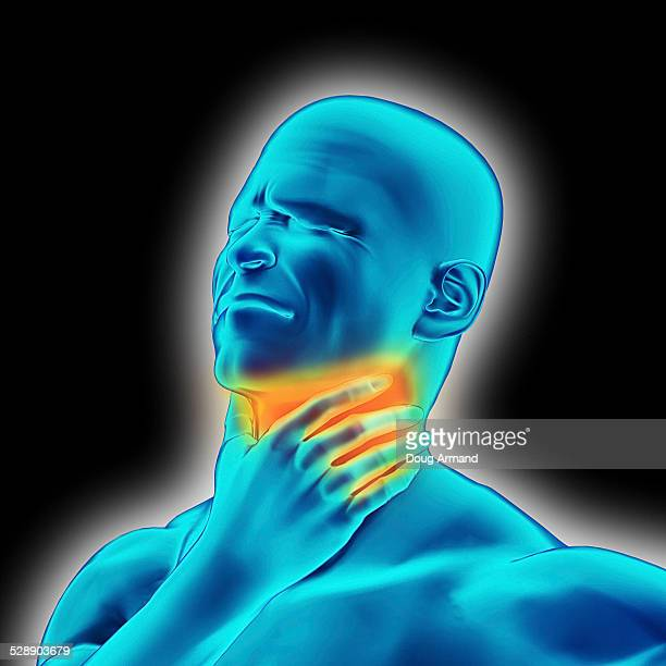 Image representing a sore throat