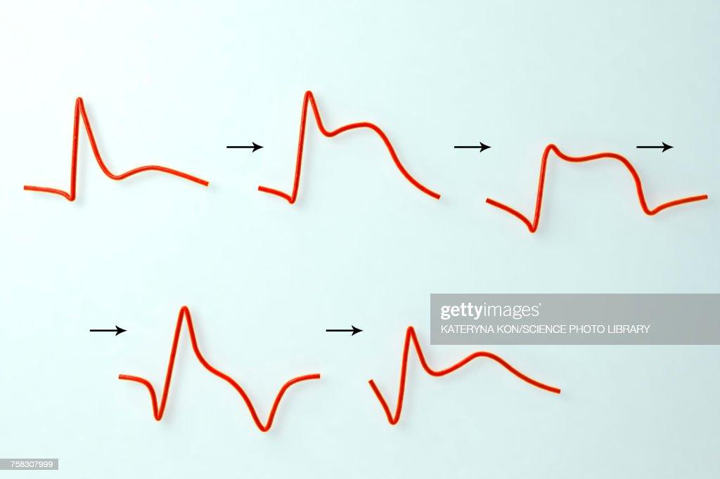 ECG in myocardial infarction, illustration : Ilustración de stock