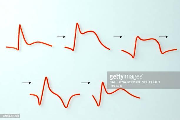 ecg in myocardial infarction, illustration - surreal stock illustrations, clip art, cartoons, & icons