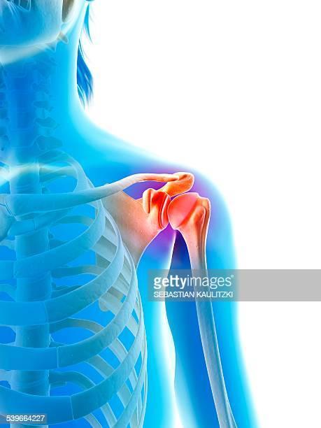 Inflamed human shoulder, illustration