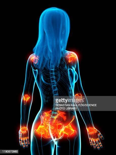 inflamed ligaments, conceptual illustration - rheumatism stock illustrations