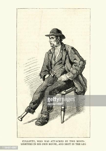 illustrations, cliparts, dessins animés et icônes de homme irlandais avec un pegleg après avoir été tiré dans la jambe - prothèse
