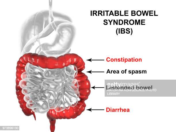 irritable bowel syndrome, illustration - diarrhea stock illustrations