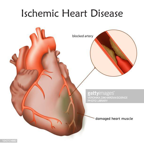 ischemic heart disease, illustration - sclerosis stock illustrations