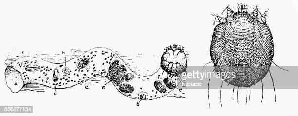 Itch Mite (Sarcoptes Scabiei)