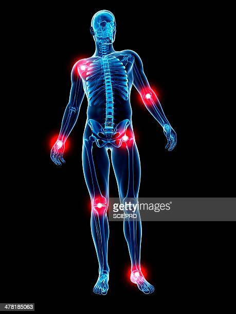 joint pain, conceptual artwork - inflammation stock illustrations