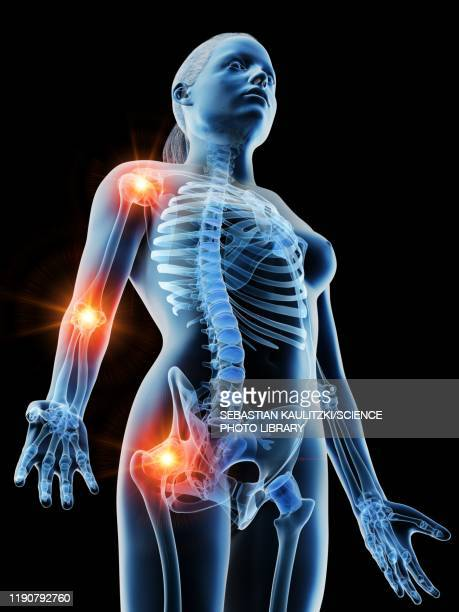 joint pain, conceptual illustration - rheumatism stock illustrations