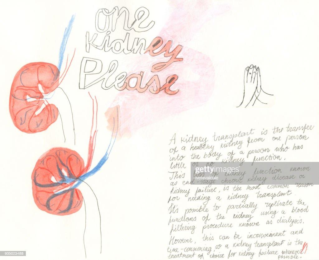 Kidney donation : Stock Illustration