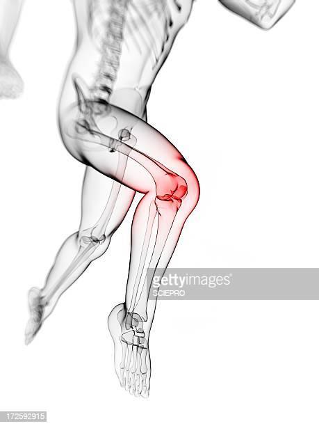Knee pain, conceptual artwork